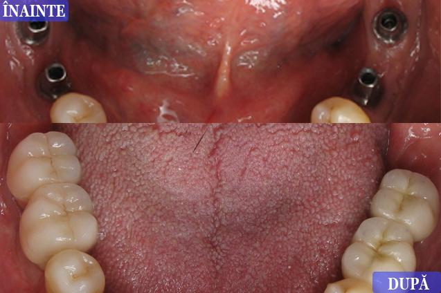 Implant dentar Constanta caz prezentat de Dr Resit Ayla