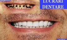 Lucrari dentare