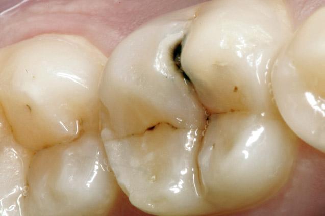Cat de periculoasa este caria dentara?!