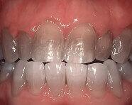 Efectele dezastruoase ale albirii dentare