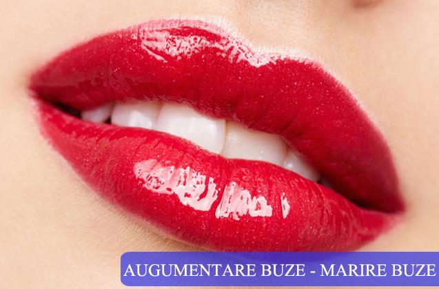 Marire Buze – Augumentare